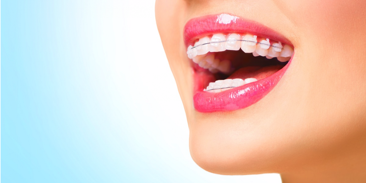 How to speed up the treatment of wearing braces