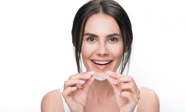 What are clear aligners?